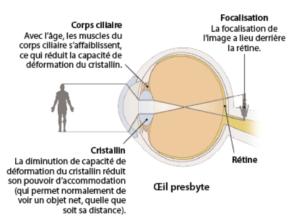 789c0ffe2ec6cc Presbytie opération Lyon, traitement laser, chirurgie réfractive ...